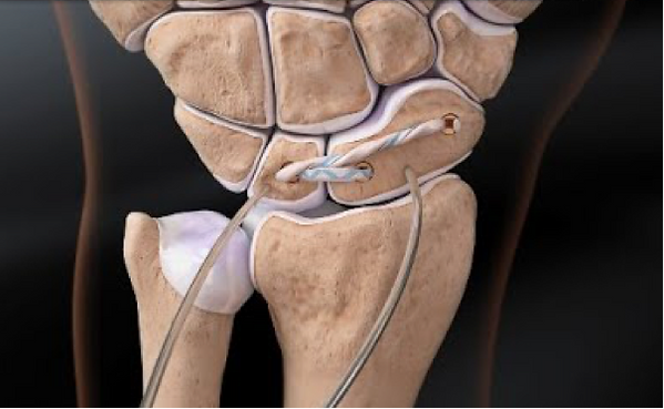scapholunate ligament reconstruction.png