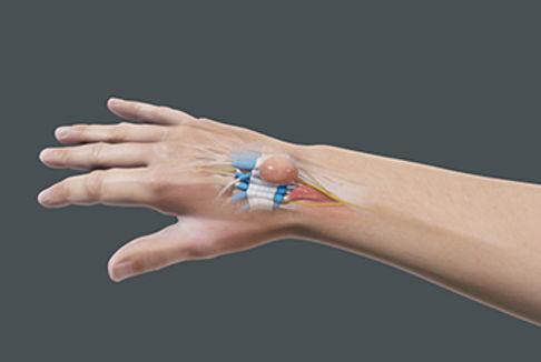 wrist ganglion.jpg