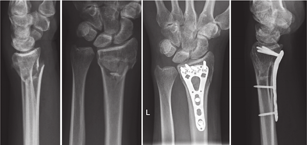 Example-of-AO-23-A3-fracture-lateral-and