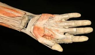 cadaveric wrist research