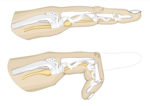 trigger finger/thumb