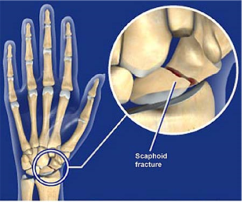 scaphoid fracture.png