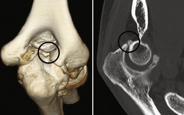 elbow osteocapsular release