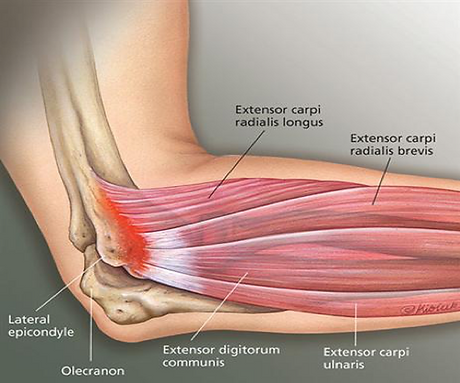 tennis elbow lateral epicondylitis.png