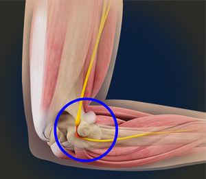 ulnar nerve compression.jpg