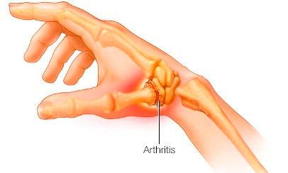 thumb arthritis.jpg