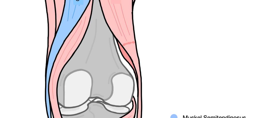 Welche Folgen entstehen beim Entfernen der Semitendinosus-Sehne (aufgrund einer Kreuzband-OP)?