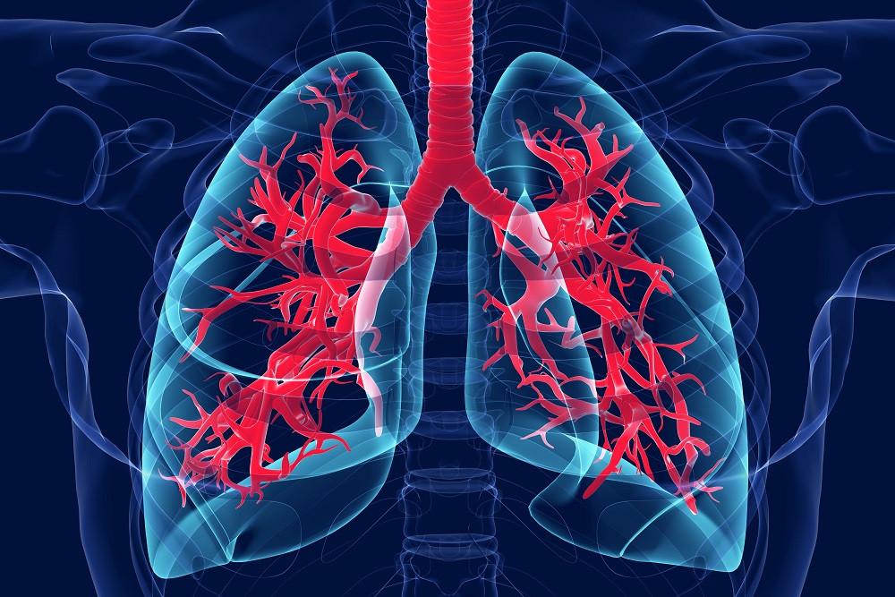 Coronavirus causes acute respiratory inflammation