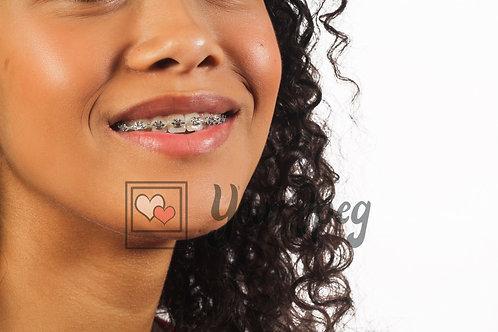 Close up shot of braces