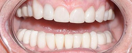royal arsenal dentistry