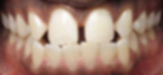 Royal Arsenal Dentists_Smile Gallery