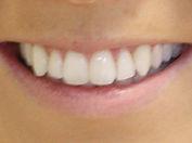 Royal Arsenal Dentists_Invisalign