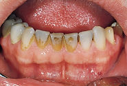 Royal Arsenal Dentists_ Dental Hygien