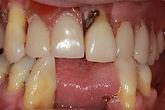 Royal Arsenal Dentists_Dental Implants