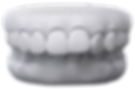 Invisalign overbite.png