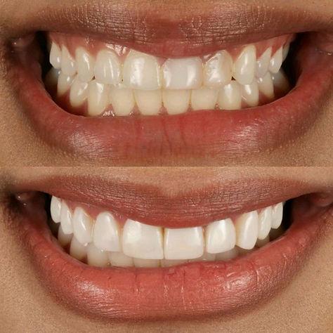 composite-bonding-st-vincent-smile-case-