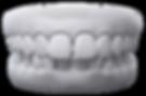 Invisalign Gap Teeth