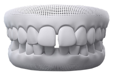 Invisalign Gap Teeth