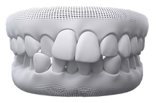 Invisalign Crowded Teeth