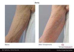 Resultados tratamiento brazos
