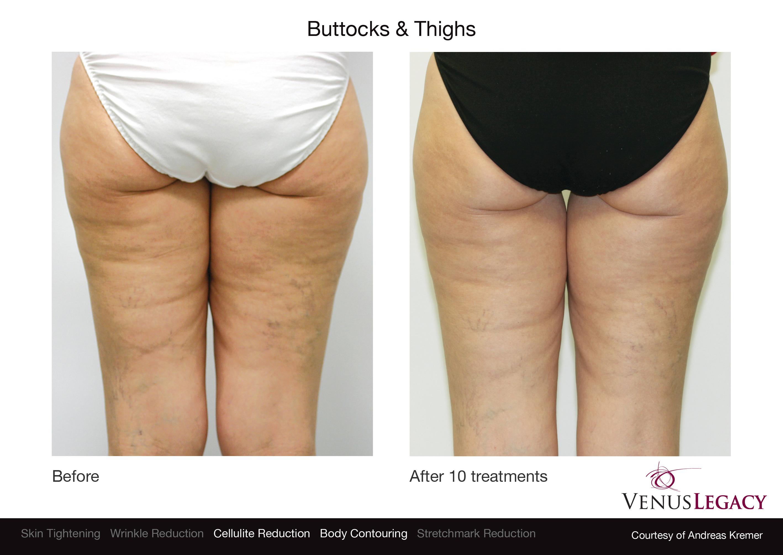 Tratamiento gluteos y piernas