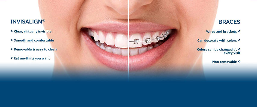 Sliders-Invisalign-vs-Braces-1.jpg