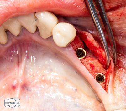 proimagehub_dental_photography_LukasPits