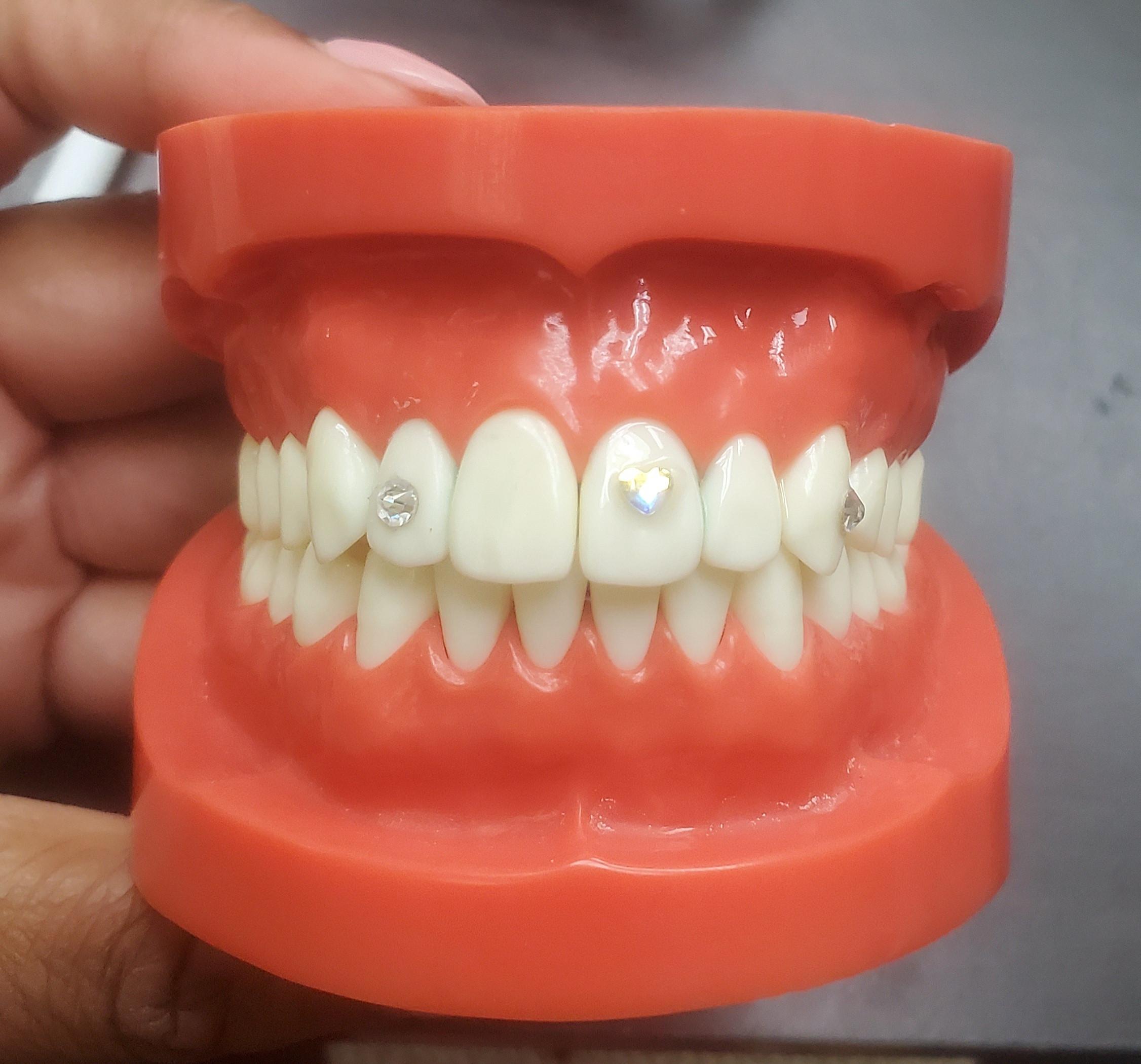 Teeth Whitening & Tooth Gem Combo