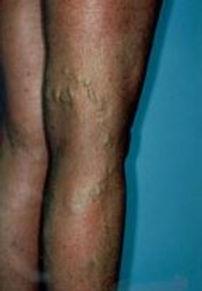 wounds africa varicose.JPG
