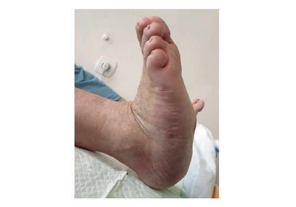 wounds charcot fot utbrent.JPG