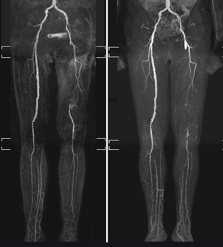 wounds africa angiogram 2.JPG