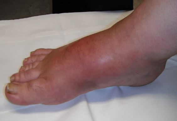 wounds acute charcot foot.JPG