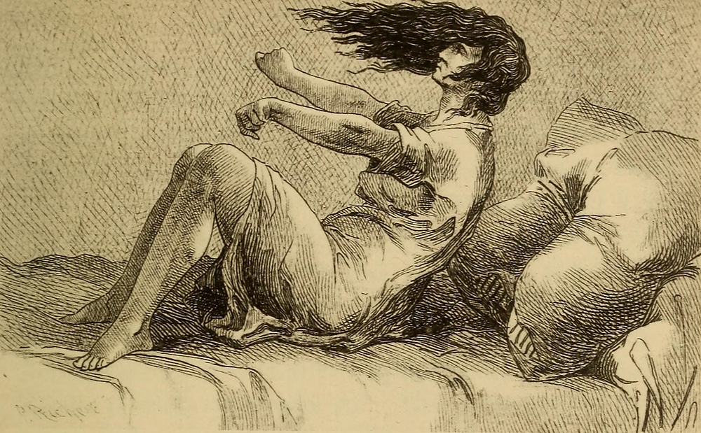 """Image from page 144 of """"Hysteria and certain allied conditions, their nature and treatment, with special reference to the application of the rest cure, massage, electrotherapy, hypnotism, etc"""" (1897)"""