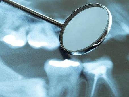 Milyen hatással lehet szervezetünkre a fogágybetegség?