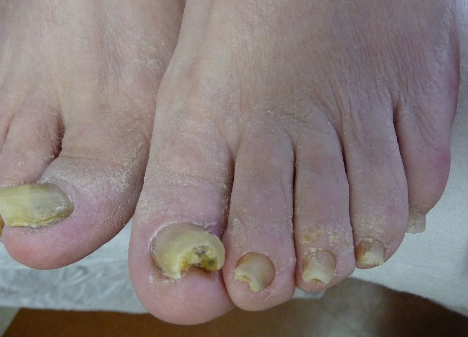 Fungal and Funky Nails.   Beaute Lab   Affordable Specialty ...
