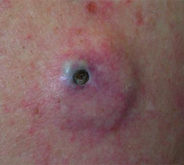 Stinky Irritating Curd Releasing Lumps Aka Cysts