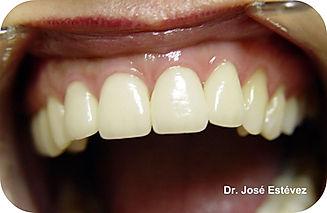 Clínica dental Madrid Dr. Estévez, dentista en Madrid, Carillas dentales