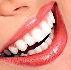 Clínica dental Madrid Dr. Estévez, dentista en Madrid, blanqueamiento dental barrio del pilar