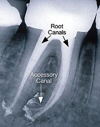 Clínica dental Madrid Dr. Estévez, dentista en Madrid, Tratamiento de canal barrio del pilar.