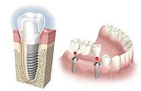 Clinica dental en Madrid Dr. Estévez, dentista en madrid, implante dental