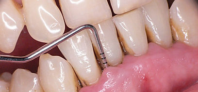 Clínica dental Madrid Dr. Estévez, dentista en Madrid, me sangran las encias