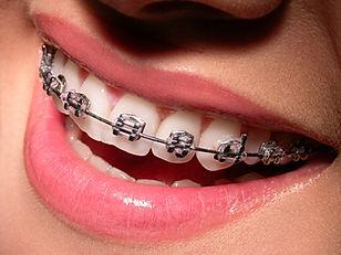Clínica dental Madrid Dr. Estévez, dentista en Madrid, Ortodoncia en Madrid,
