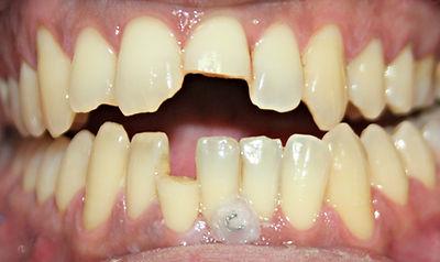 Clínica dental Madrid Dr. Estévez, dentista en Madrid, Diente roto