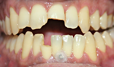 Clínica dental Madrid Dr. Estévez, dentista en Madrid, Diente roto