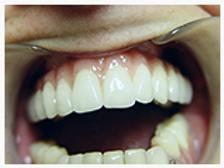 Clínica dental Madrid Dr. Estévez, dentista en Madrid, implantes dentales barrio del pilar