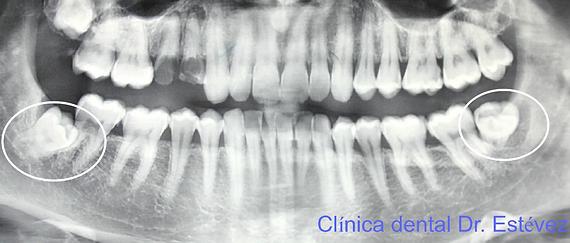 Clínica dental Madrid Dr. Estévez, dentista en Madrid, me duele la muela del juicio
