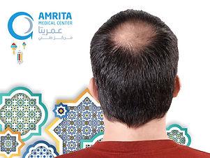 WEBSITE OFFERSPRP HAIR .jpg