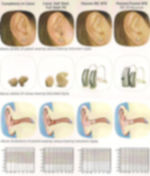 hearing aids 1.png