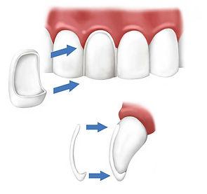 Veneers Port Macquarie dentist dental