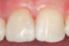 TL Dentist Port Macquarie